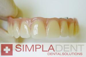 Удаление зуба мудрости, удаление верхнего или нижнего зуба мудрости, сложное удаление зуба мудрости.