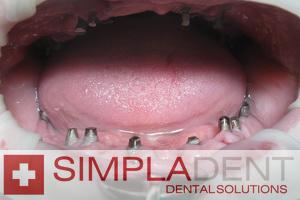 Имплантация челюсти при полном отсутствии зубов: как проводится имплантация зубов верхней и нижней челюсти?