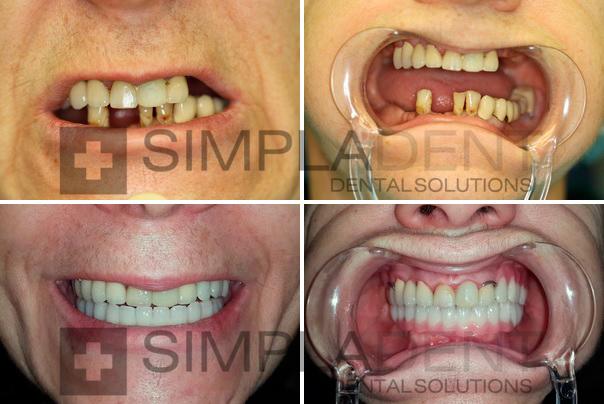 Импланты зубов фото до и после