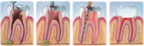 Удаление кист и гранулем зуба, лечение зубов в клинике Simpladent