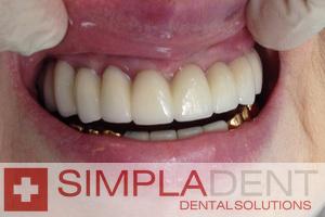 Зубные протезы виды, отзывы, фото, минусы и плюсы