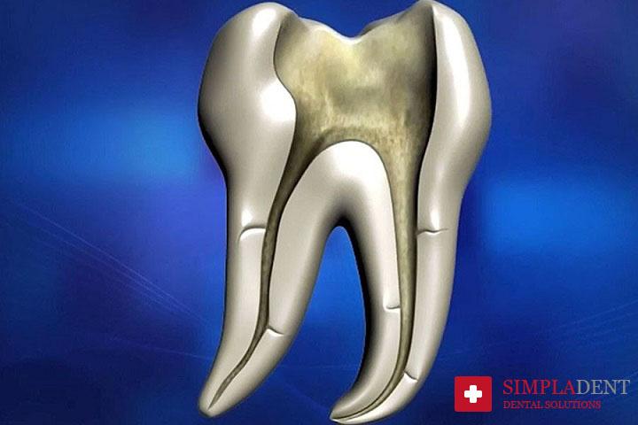 Способы лечения каналов зуба