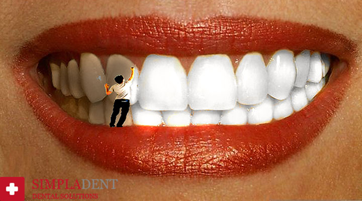 чистить зубы от налета дома