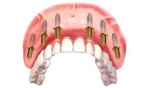Как протезировать зубы при отсутствии коренных зубов?