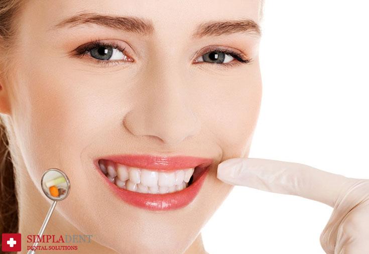 стоит ли лечить кисту зуба