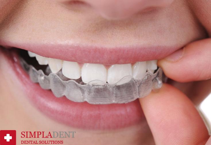 выровнять зубы дома