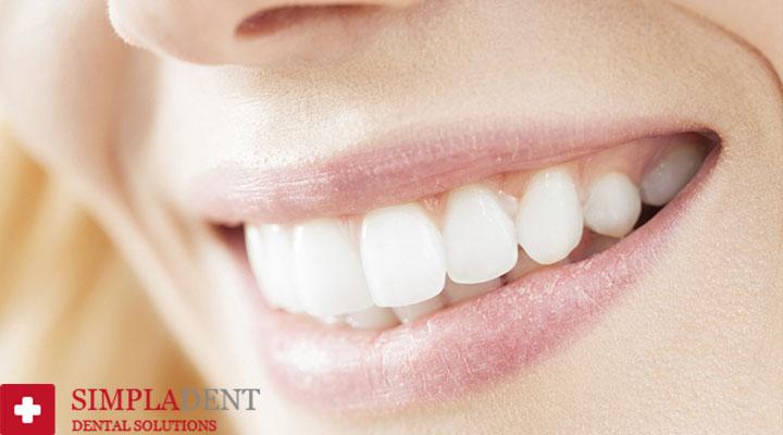 как очистить зуб от налета