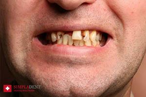 проблема гнилых зубов, как лечить