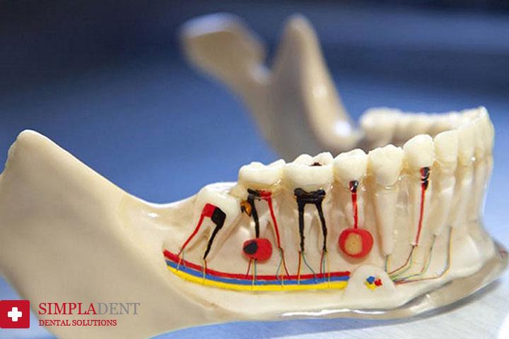 Современные методы лечения зубных каналов