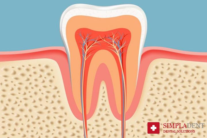 Лечение повреждений зубного канала